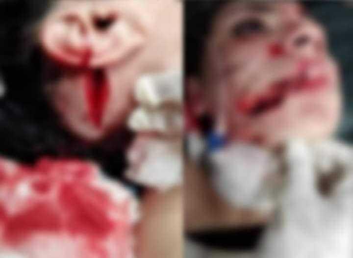 مزّق وجهها وجسدها بمساعدة شقيقه وطلب منها اتهام مجهولين.. مأساة إسراء عماد  ضحية عنف زوجها بالإسكندرية | أهل مصر